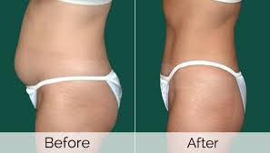 vaser-lipo-in-fort-lauderdale